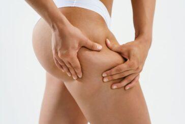 Celulitis y estrías: por qué aparecen en la piel y cómo tratarlas